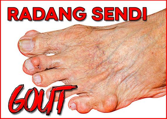 Halia Hitam Gout